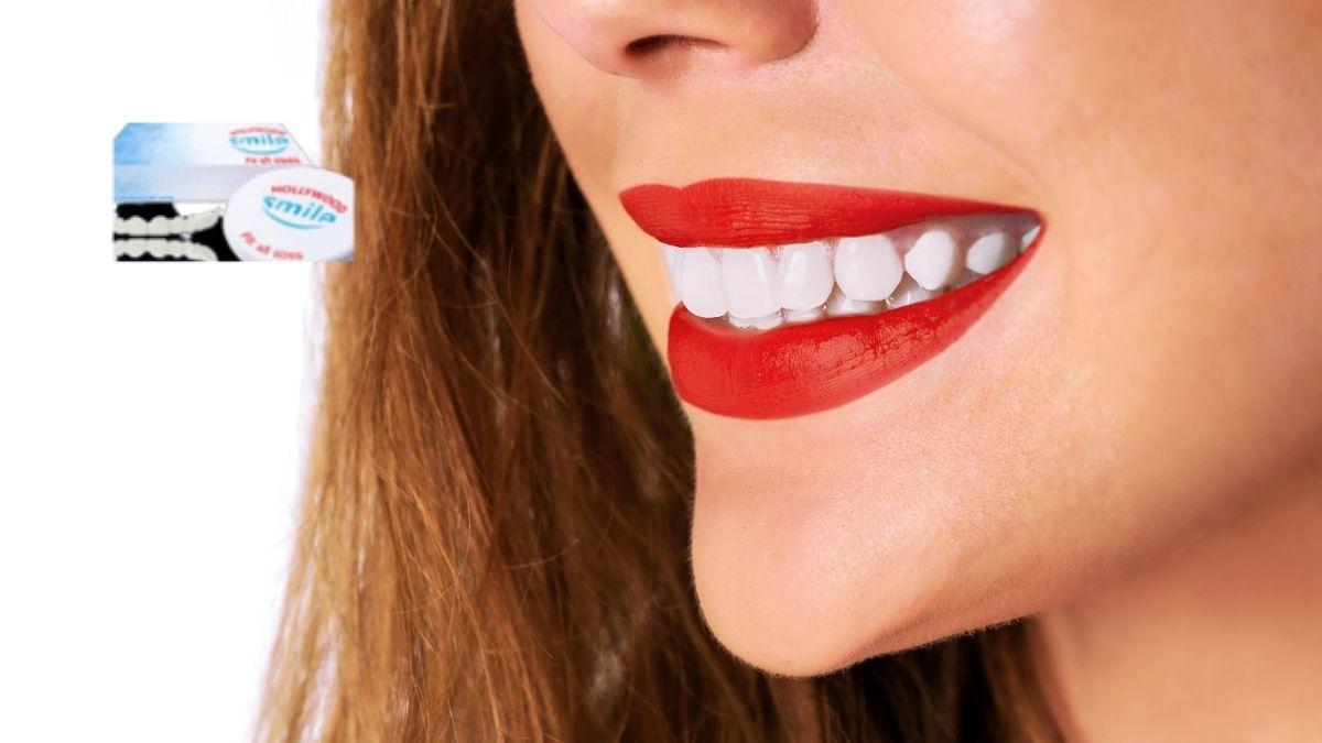 Hollywood Smile Veneers,